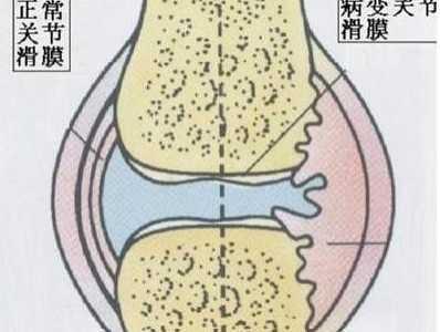如何处理膝盖积液 积液对运动员的影响