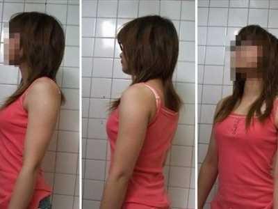 网友手臂抽脂全过程 手臂减肥前后