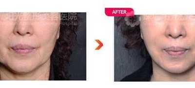 3D提拉线面部紧致提升 做脸部3d提升