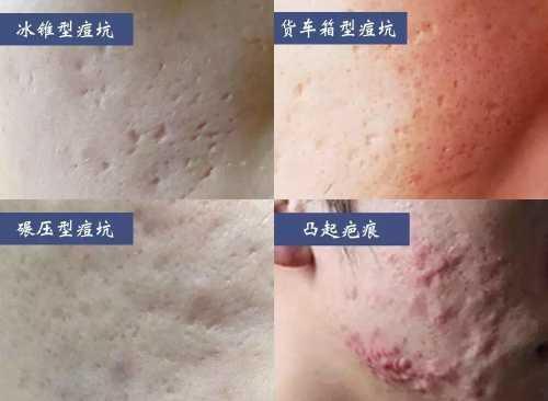 4种常见痘坑治疗方法的对比区别 怎幺治疗痘坑