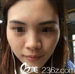武汉奥黛丽刘云忠专家恢复了我的少女颜 自体脂肪丰面颊