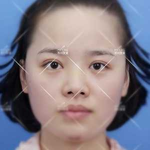 苏州美莱医生叫您怎样侧面正面看鼻子的弧度 苏州美莱美容医院医生