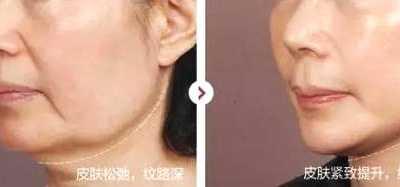 手术眼部拉皮后为什幺还有皱纹 关于眼部拉皮