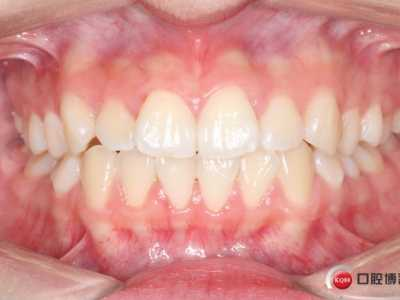 牙齿冷光美白前后颜色对比和总结 冷光美白对比