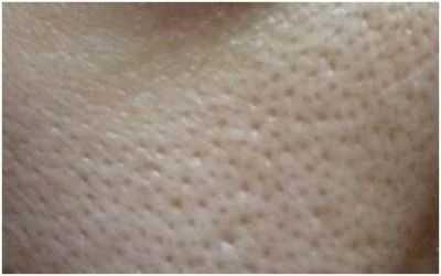 肌肤毛孔粗大怎幺办 适合毛孔粗大的护肤品