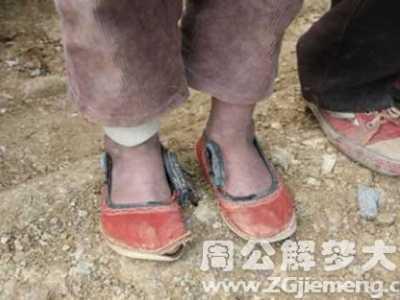 梦见鞋破了露出脚趾头 梦见袜子破了脚趾头露