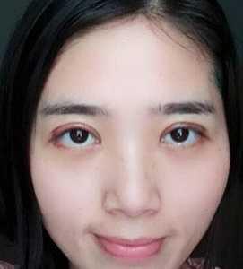 苏州韩式双眼皮真实案例分享 韩式压双眼皮