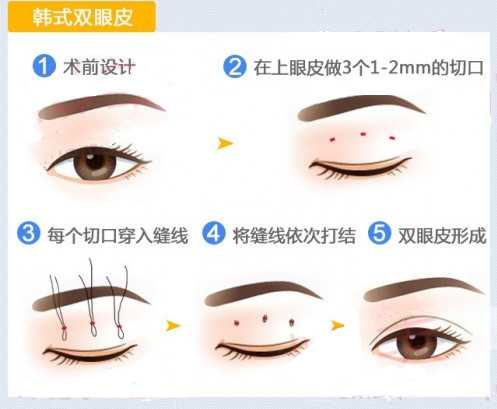 割双眼皮选择哪种方法好 割双眼皮手术哪里好