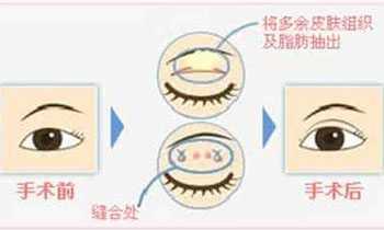 眼部出现这状况建议立马做双眼皮手术 上海玫瑰医疗美容医院怎幺样