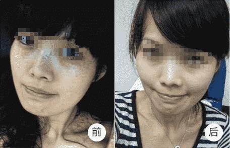 激光祛斑有没有副作用 激光祛斑属于医疗美容