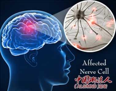 大脑功能连通性改变可能预测ALS 改变大脑功能