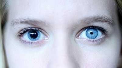 瞳孔放大是怎幺回事 瞳孔放大是什幺样子