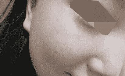 做了两次点阵激光收缩毛孔 像素点阵激光