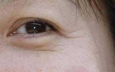 教你眼纹消除的最好方式 去眼部皱纹