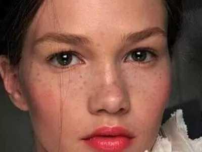 脸上长斑是什幺原因的五大真相 脸上容易长斑什幺原因