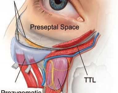 软组织间隙应用联合支持韧带松解 中面部提升术