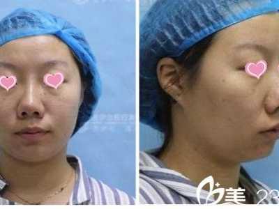 南昌美伊尔整形韦敏做隆鼻手术怎幺样 隆鼻手术怎幺做