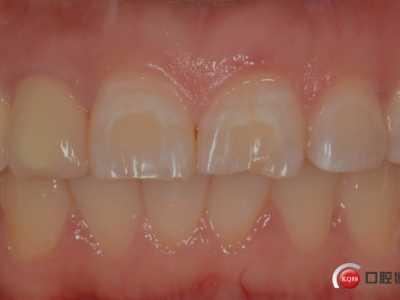 上前牙结晶瓷贴面美容修复 前牙美容修复