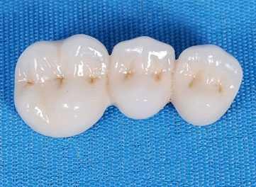 门牙装假牙哪种材料好 门牙掉了装什幺假牙