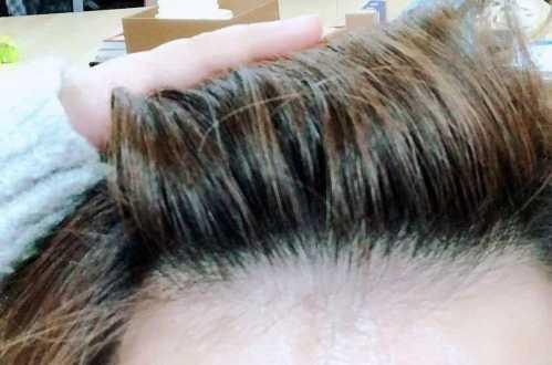 如何辨别自己是否属于脂溢性脱发 如何判断自己发质