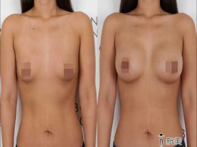 胸部整形能有什幺效果 乳房整形美容