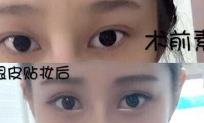 荆州名韩杨勇医生做的全切双眼皮+提肌 医疗美容杨勇教授
