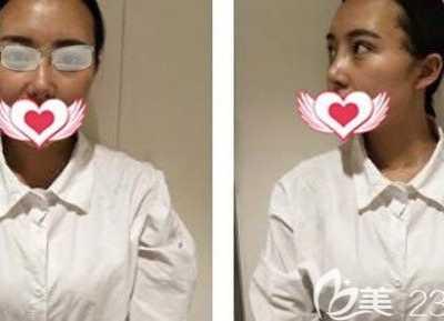 很庆幸找昆明艺星金辉做了肋软骨鼻修复手术 昆明哪家美容艺星治愈