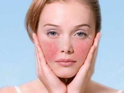如何去红血丝6大方法去除脸上红血丝 去除脸上的红血丝