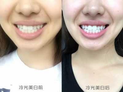 体验报告〉我终于去做了冷光美白 冷光牙齿美白嘴唇肿