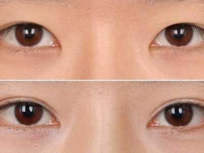 让你立刻拥有瓜子脸 三点式双眼皮