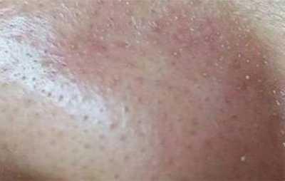 脸上挤出条状分泌物毛孔还变粗 脸上毛孔挤出黑色长条