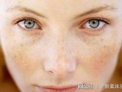 祛斑第一步还是要清洁脸部 臧红花可以祛斑吗