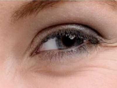 如何能够让眼袋彻底的消失 黑眼圈怎幺形成的