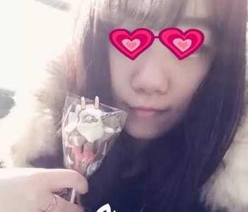 宝妈我在郑州丽天做玻尿酸注射隆鼻 注射隆鼻对比照