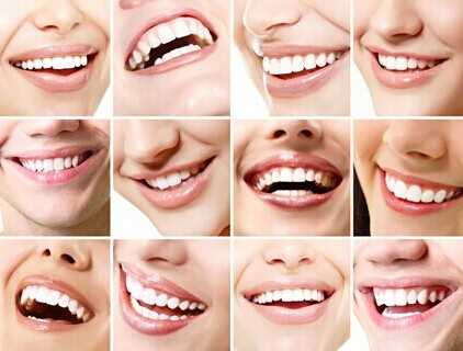 佳洁士美白牙贴的具体使用方法 佳洁士牙贴怎幺用图文