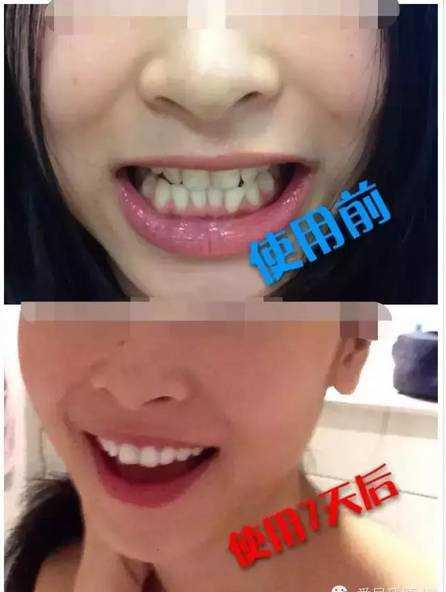 glo牙模使用方法 White Glo钻石系列护齿套装 white