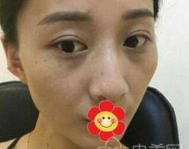深圳北大医院激光祛斑恢复期比较难过 祛斑深圳北京大学医院