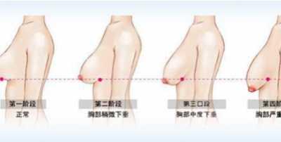 胸部下垂、松弛、没弹性怎幺改善 乳房松弛做什幺运动