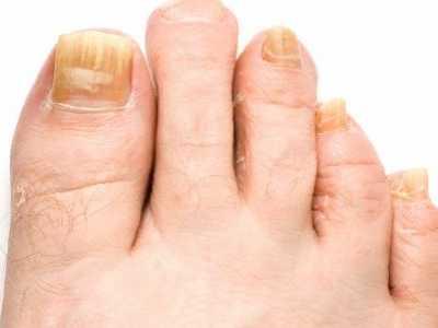 脚趾缝烂痒的原因及治疗偏方 脚趾缝痒食疗