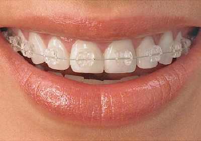 牙齿矫正的五种方式 牙齿矫正器哪种好