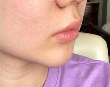看看这个案例图就知道 鼻梁缩窄