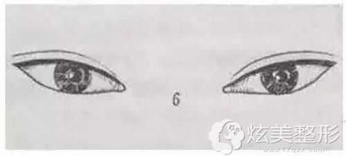 割完双眼皮变吊梢眼还能修复回来不 吊眼皮变成了双眼皮